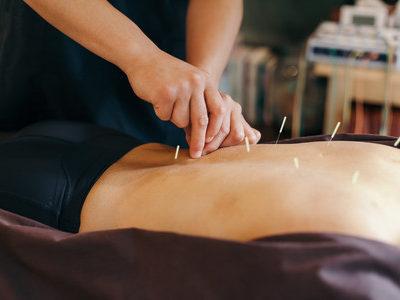 acupuntura rituals fuengirola masaje massage terapias