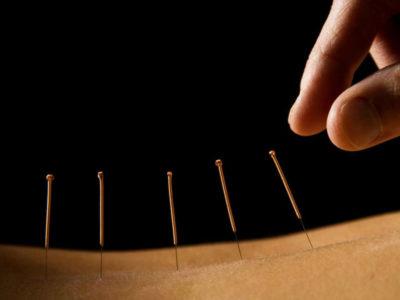 acupuntura rituals fuengirola massage masajes terapias naturales nature